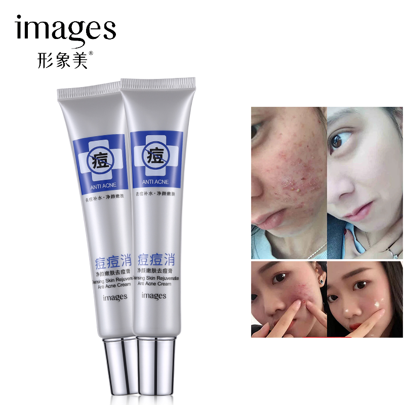 Images Skin Care Anti Acne Treatment Face Cream Removal Oily Skin