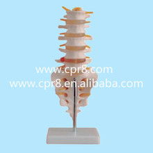 BIX-A1011 Life-Size Lumbar Vertebrae With Tail Vertebrae Model  Medical Mannequin Human Spine model W004