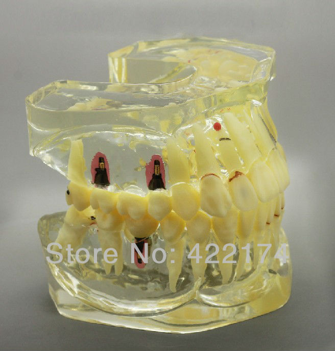 Free Shipping Dental restoration prosthesis study model dental tooth teeth dentist dentistry anatomical anatomy model soarday children primary teeth alternating transparent model dental root clearly displayed dentist patient communication