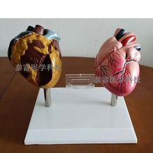 Модель сердца человека курить вредит модели образования патологическое сердце Бесплатные покупки