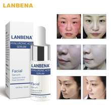 LANBENA HA Hyaluronic Acid Moisturization Essence Skin Face Care Cream Black Head Acne Treatment Ageless Whitening Cream 3pcs(China)