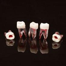 Modèle de Canal radiculaire dentaire, 100 pièces, pour RCT, pratique de la pulpe, modèle de laboratoire de dentisterie, matériaux dentaires, outils de dentiste