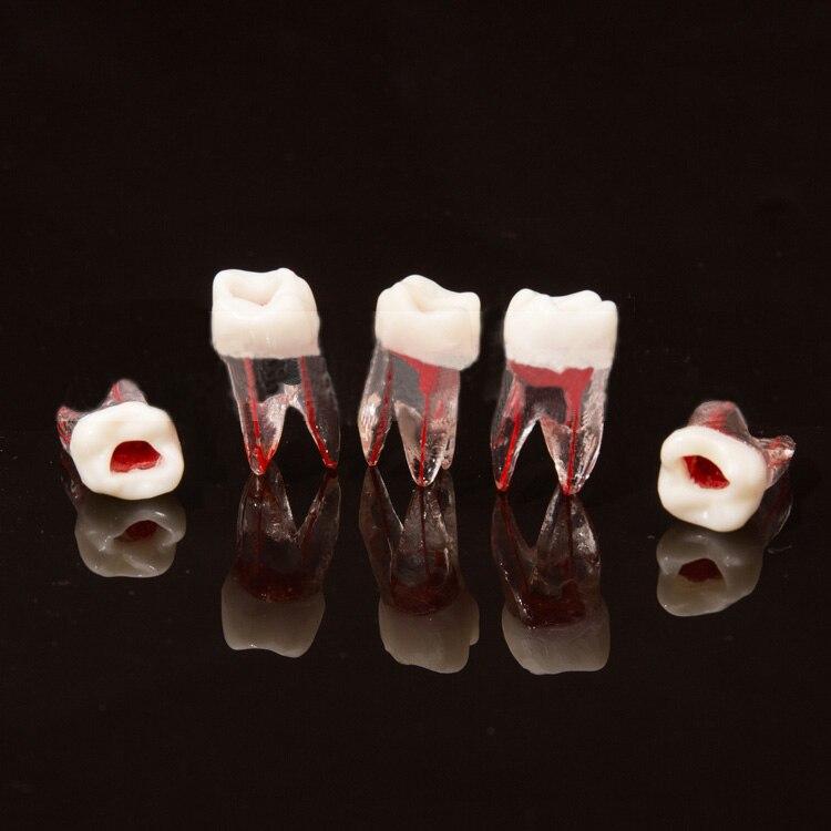100 pièces modèle de Canal radiculaire de dent dentaire pour la pratique RCT modèle de laboratoire de dentisterie de pulpe outils de dentiste de matériaux dentaires