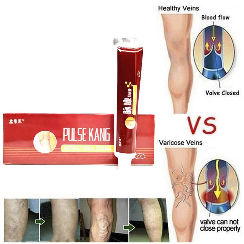 20g Varicose Veins Treatment Cream Ointment Vasculitis Phlebitis Spider Pain Varicosity Angiitis Remedy Removal Herbal Cream