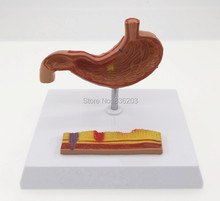Diseas of Human Stomach with Ulcers Model in trauma anatomy skeleton anatomical  brain skull medical training manikins