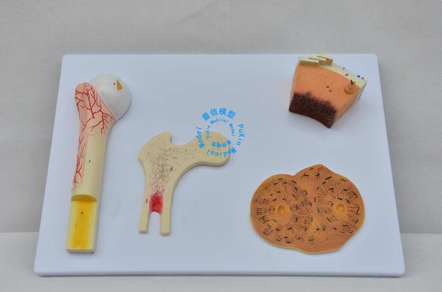 Envío libre y estructura ósea modelo, hueso esponjoso, hueso ...