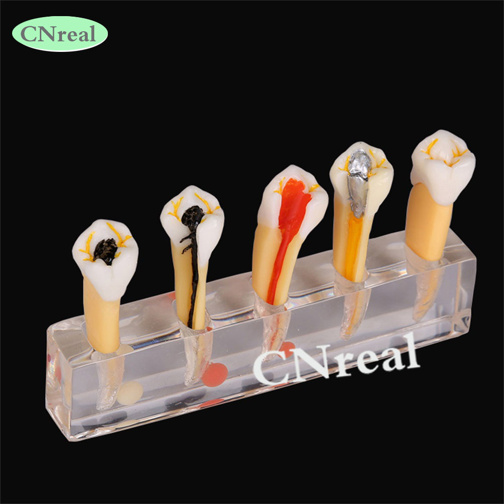 1 piece Dental 5-stage Endodontium Pulp Treatment Model for Demonstration Detachable dental retainer demonstration model orthodontics treatment model