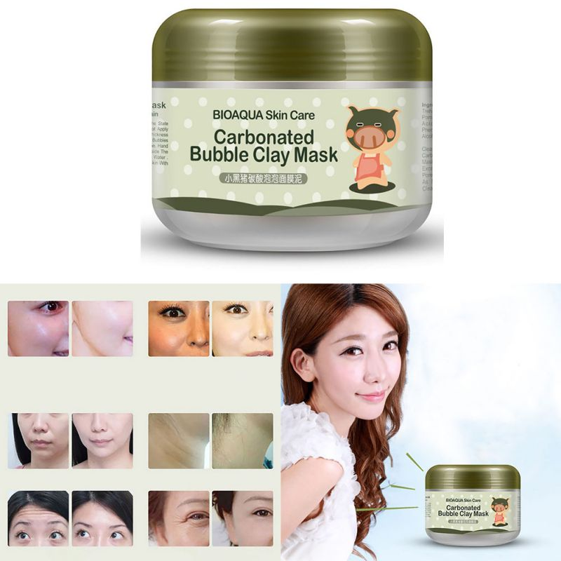 Profunda dos Poros Carbonatadas Bolha Hidratante Anti-acne Rosto