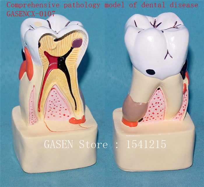 Oral care model Tooth model Teaching model Medical teaching aidsComprehensive pathology model of dental disease - GASENCX-0107 transparent dental pathology model dental care model