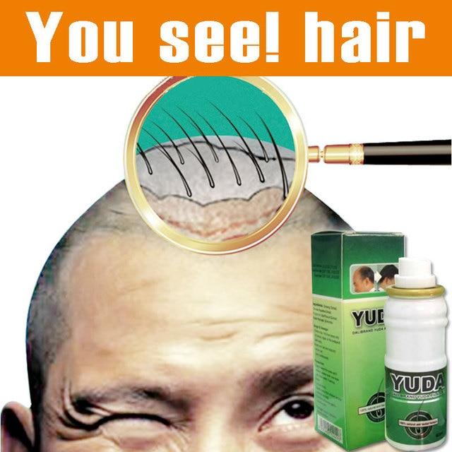 Оригинал алопеция Юда pilatory дополнительной прочности Sunburst рост волос лечение волос Облысение быстро рост волос анти выпадение волос
