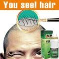 Yuda pilatory fuerza extra originales Sunburst crecimiento del cabello tratamiento de la alopecia Calvicie rápido crecimiento del pelo pérdida de pelo anti