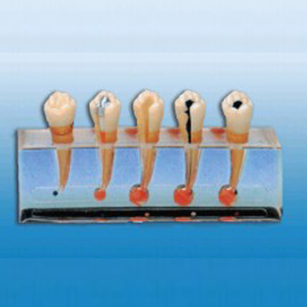 Clinical Dental Pulp Disease Model Dental Model BIX-L1011 MQ068 clinical