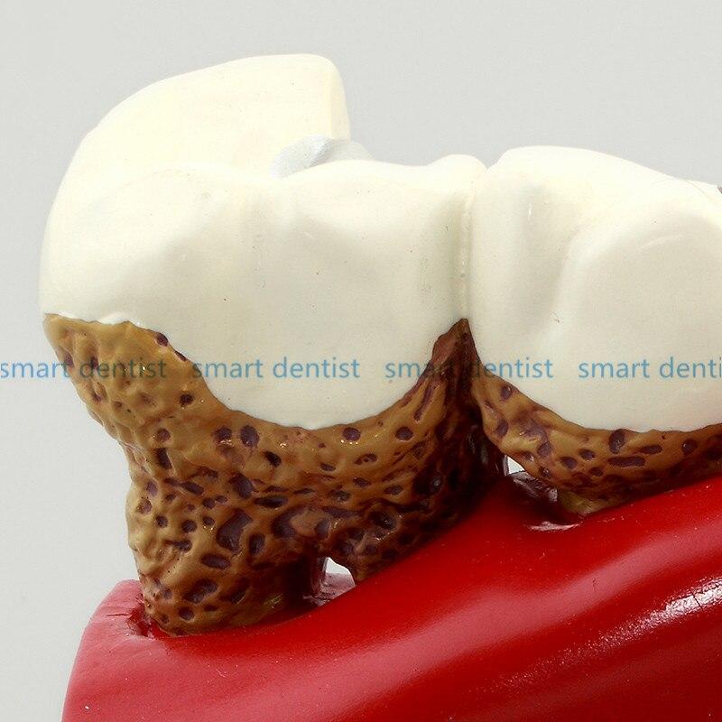 Gute Qualität Karies Tooth Zahnarzt Patienten Kommunikation Anatomie ...