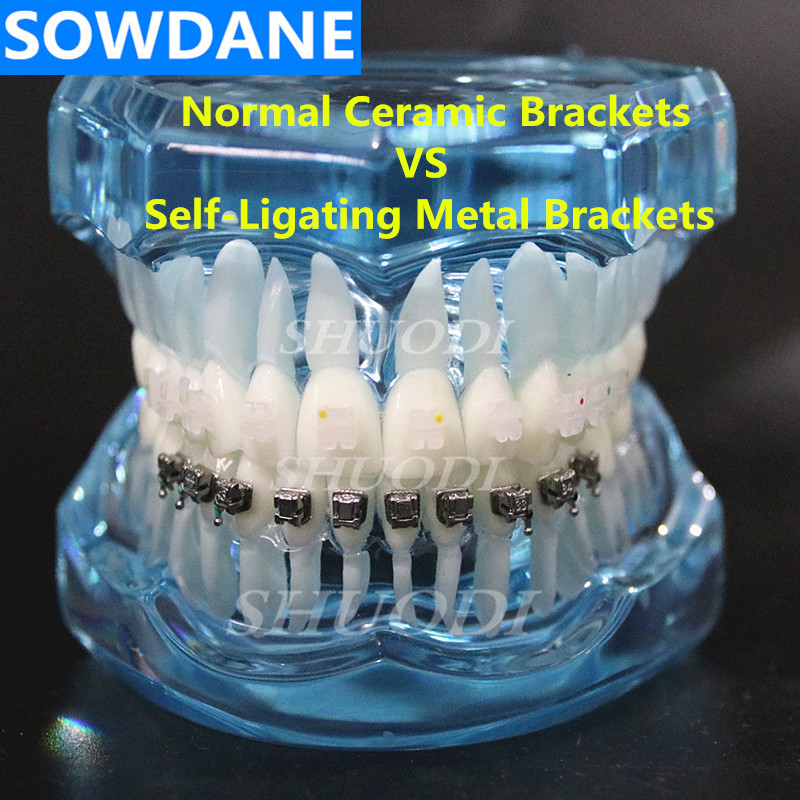 Dental Orthodontic  Model with Ceramic and Self-Ligating Metal  Brackets for Patient CommunicationDental Orthodontic  Model with Ceramic and Self-Ligating Metal  Brackets for Patient Communication