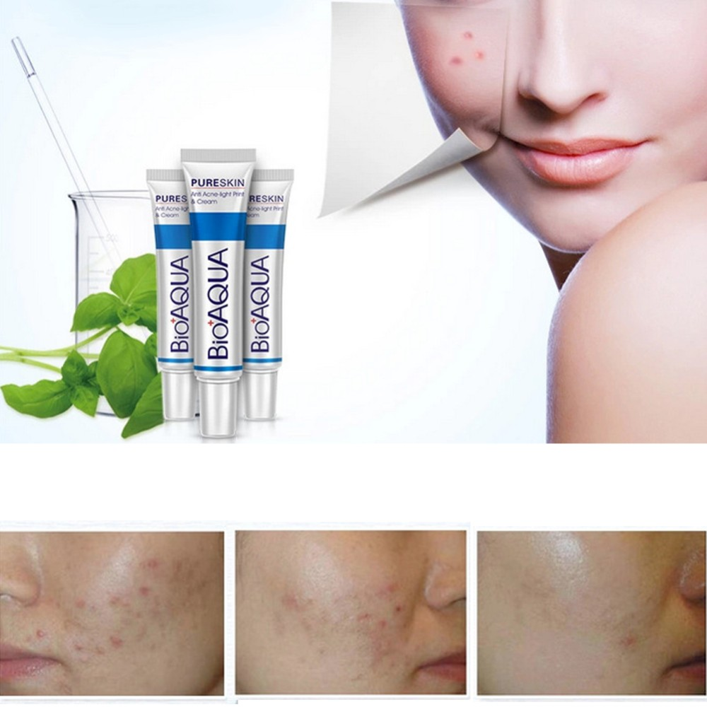 30g Removal Acne Scar Marks Cream Treatment Face Care Whitening