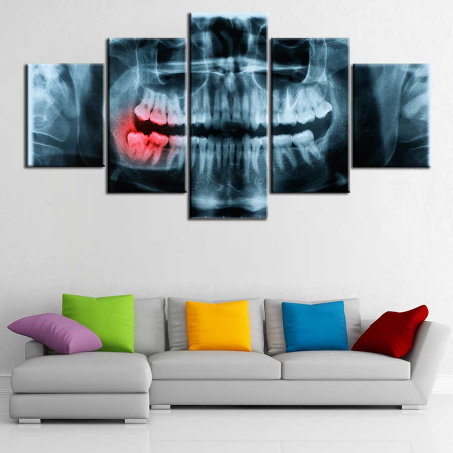 5 piece canvas x-ray Painful Teeth dental doctor picture Canvas picture painting room decor print poster wall art WD-3040