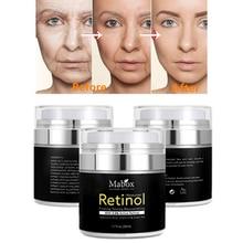 MABOX Retinol 2.5% увлажнитель для лица Крем Антивозрастной, антиакне Гиалуроновая Кислота Витамин Е и зеленый чай отбеливающий крем Прямая поставка