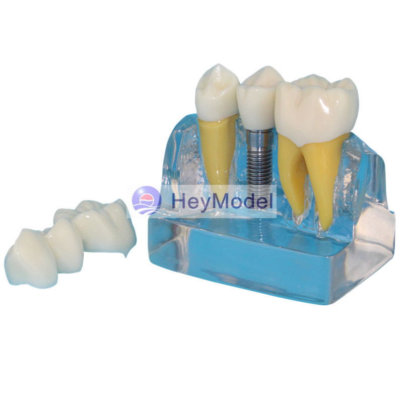 HeyModel Dental implant demonstration model Dentist doctor - patient communication model soarday children primary teeth alternating transparent model dental root clearly displayed dentist patient communication