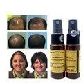 Rápido Crecimiento Del Pelo para las mujeres yuda pilatory regeneración del cabello Calvicie tratamiento de pérdida de pelo anti aceite barba crecimiento de vello facial 2 unids/set