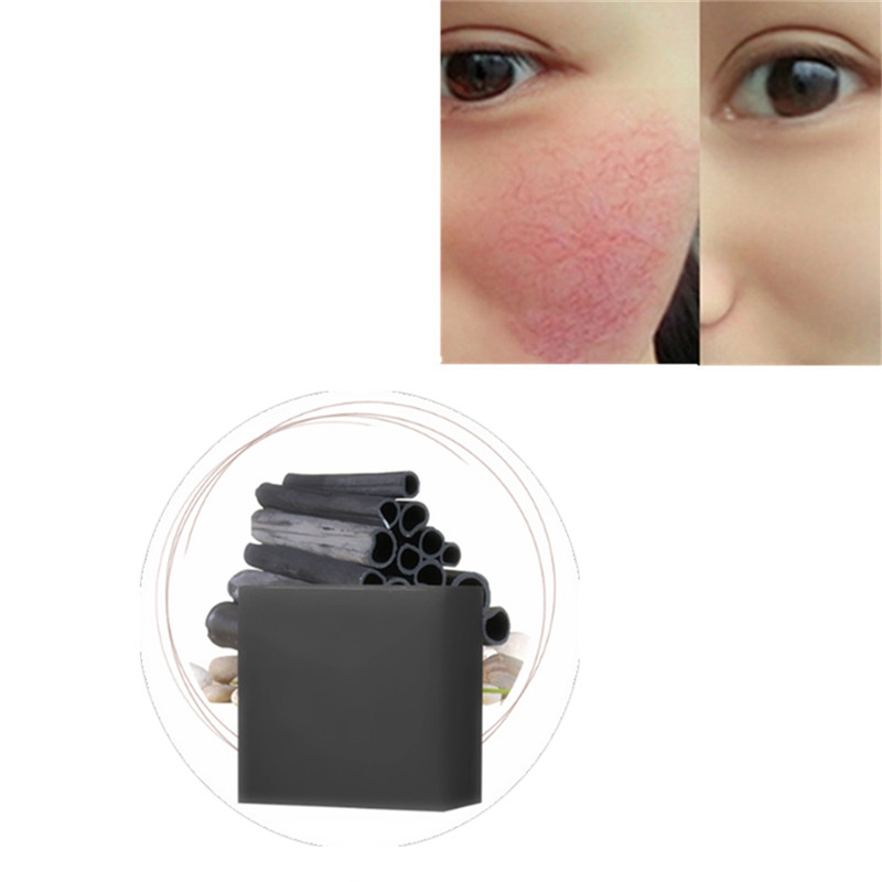 Dark Spot Corrector Skin Whitening Oil Control Soap Brighten Blemish Removal Handmade Soap Reduces Age Spots Freckles Melasma