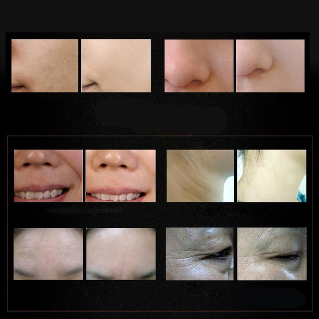 Face Cream Of Wrinkle Argireline Collagen Peptides Solution Anti Wrinkle Cream Anti Aging Instantly Ageless Maquillaje Skin Care Skin Care