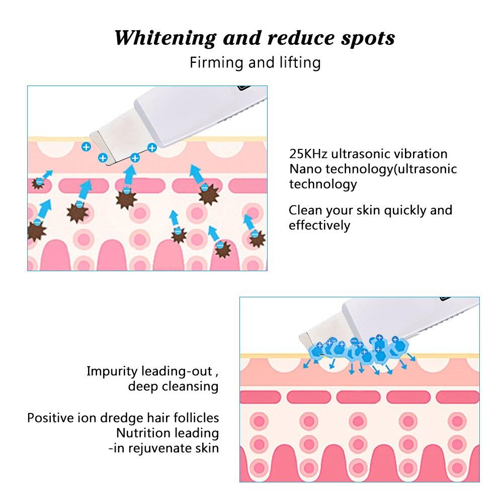 Appareil de gommage et de purification du visage à ultrasons