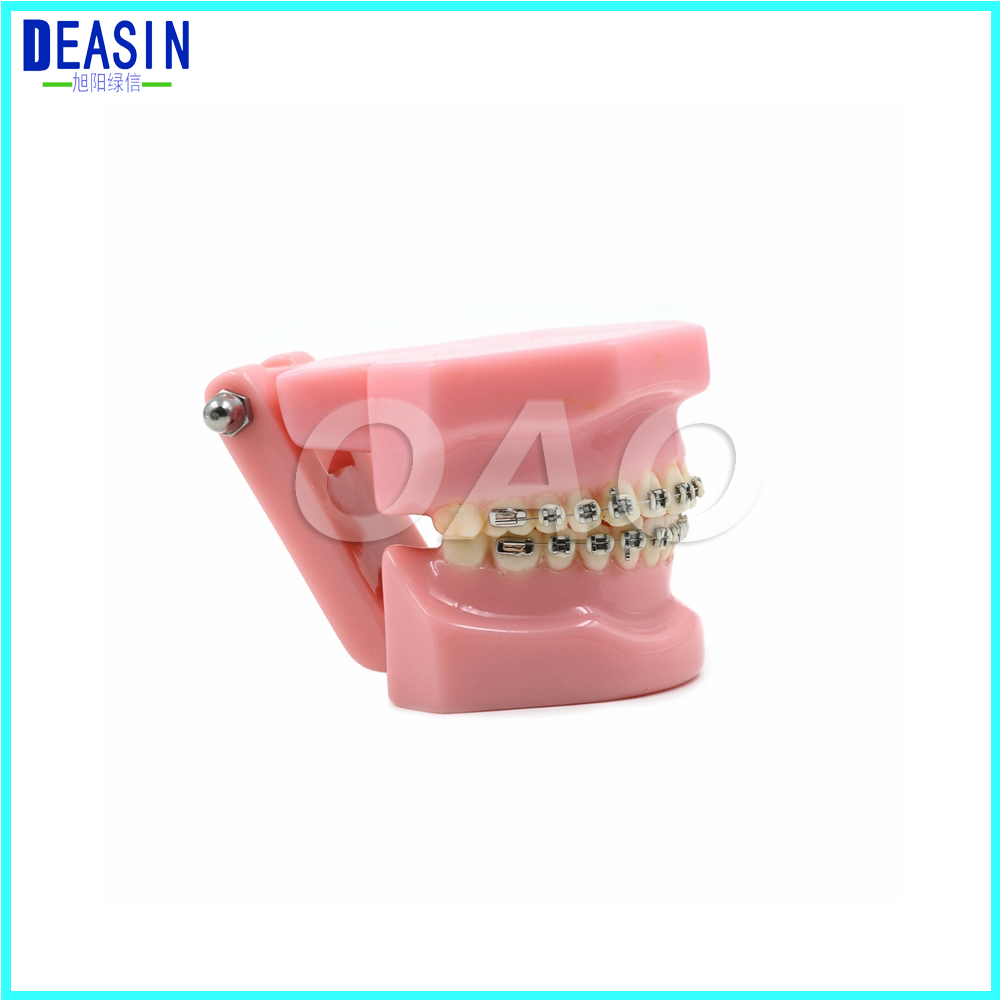 Dental Orthodontics Typodont Teeth Model Metal Brace Bracket Typodont with Arch Wire 2016 dental orthodontics typodont teeth model half metal half ceramic brace typodont with arch wire