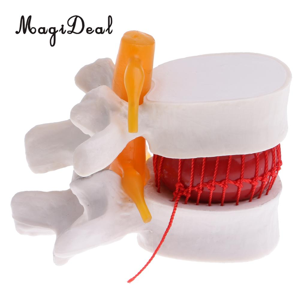 MagiDeal PVC Human Spine Lumbar Intervertebral Disc Protrusion Model Magnification 2x fo ...
