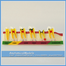 ED-DH1307 Human Tooth Caries Developing Model , Medical Science Educational Dental Teaching Models