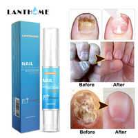 Remover Cuticle Oil Nail Oil Pen The Herb Fungal Nail Repair Bright Cream Disinfection Toe Nail Fungus Treatment Foot Feet Care