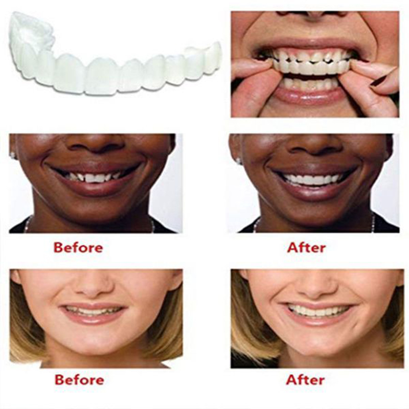Drop Ship Smile Maker Fit Flex Teeth with Box Fits Snap on Smile False Teeth Upper Fake Tooth Cover Perfect Smile Veneers 1