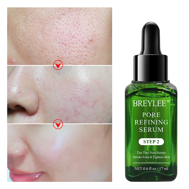 BREYLEE Shrink Pores Serum Pore Tightens Refining Moisturizing Essence Whitening Anti-aging Oil Control Facial Essence Skin Care 2
