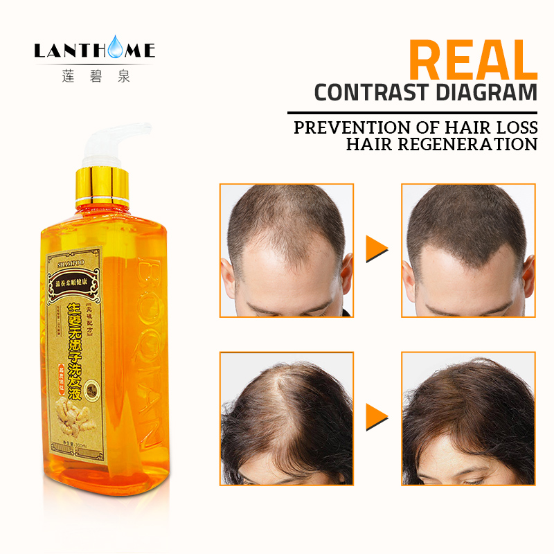 300ml Ginger Shampoo Anti Hair Baldness Anti Hair Loss Dandruff Black Hair Shampoo Professional Grow Thick