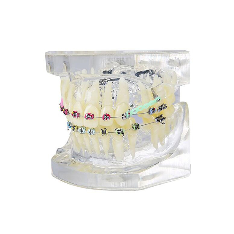 1 PCS Transparent Tooth Model Teeth Malocclusion Orthodontic Colorful Model Dental Study Dentist Teaching transparent dental orthodontic mallocclusion model with brackets archwire buccal tube tooth extraction for patient communication