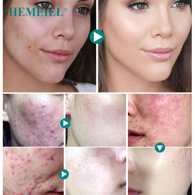 HEMEIEL Acne Treatment Face Cream Anti Acne Scar Removal Pimple Blackhead Moisturizing Whiten Oil-control Shrink Pores Skin Care