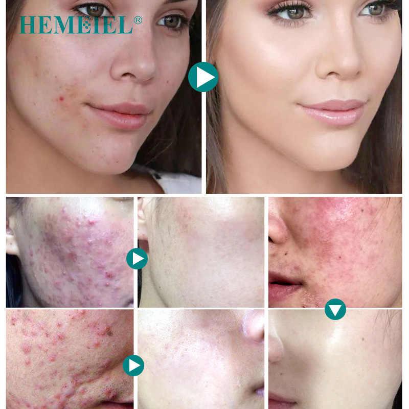 HEMEIEL лечение акне крем для лица анти Удаление Шрама от акне прыщи угрей увлажняющий отбеливающий контроль масла термоусадочные поры кожи уход