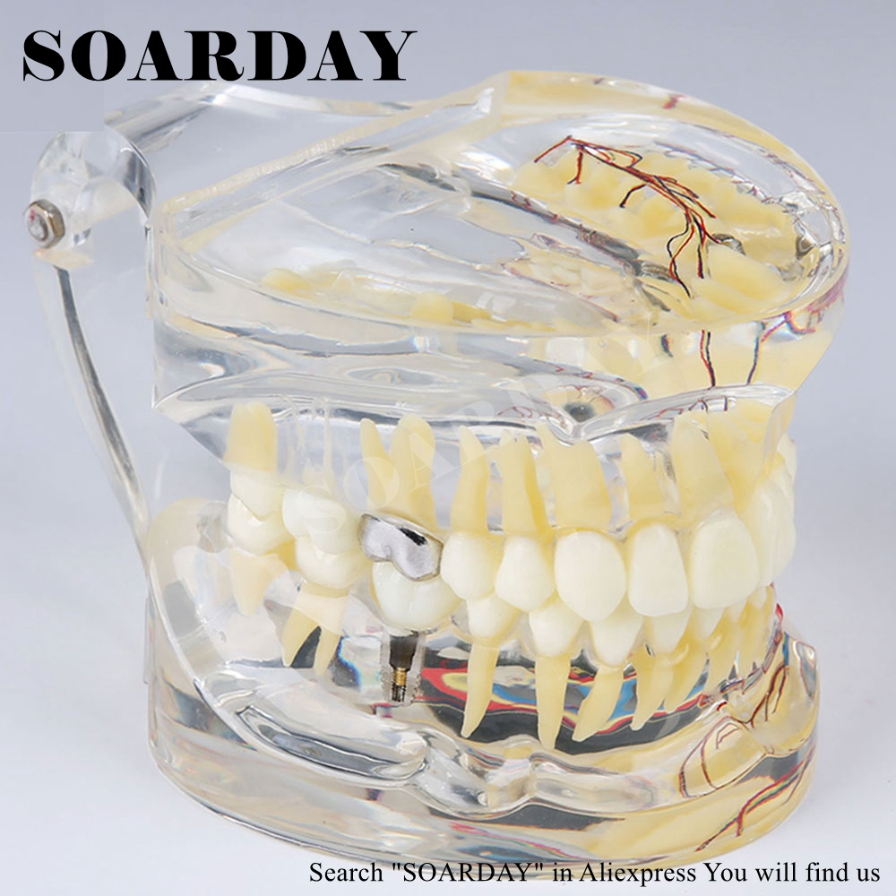 SOARDAY Dental Adult Transparent Pathological Teeth Model with tooth nerve and inlays soarday tooth root canal restoration model oral dental training materials tooth nerve model