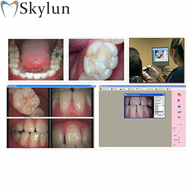 Dental Intraoral Camera USB Oral Camera 1/4 Sony CCD 2.0 Mega Pixels Automatic Focusing Dentist Imaging System Tool SL960