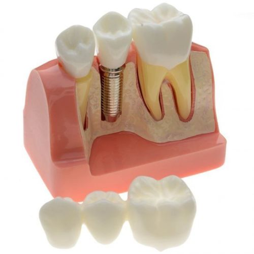 Dental teeth model Implant Analysis Crown Bridge Demonstration dentoform macro implant crown bridge demostratation teeth tooh typodont teeth model