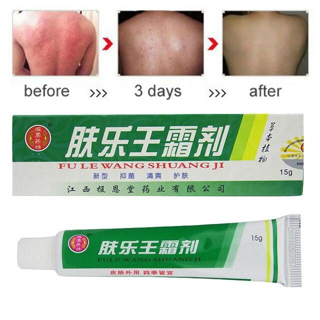1 unidad de crema de Psoriasis para masaje corporal parches de Dermatitis y Eczema Pruritus Psoriasis