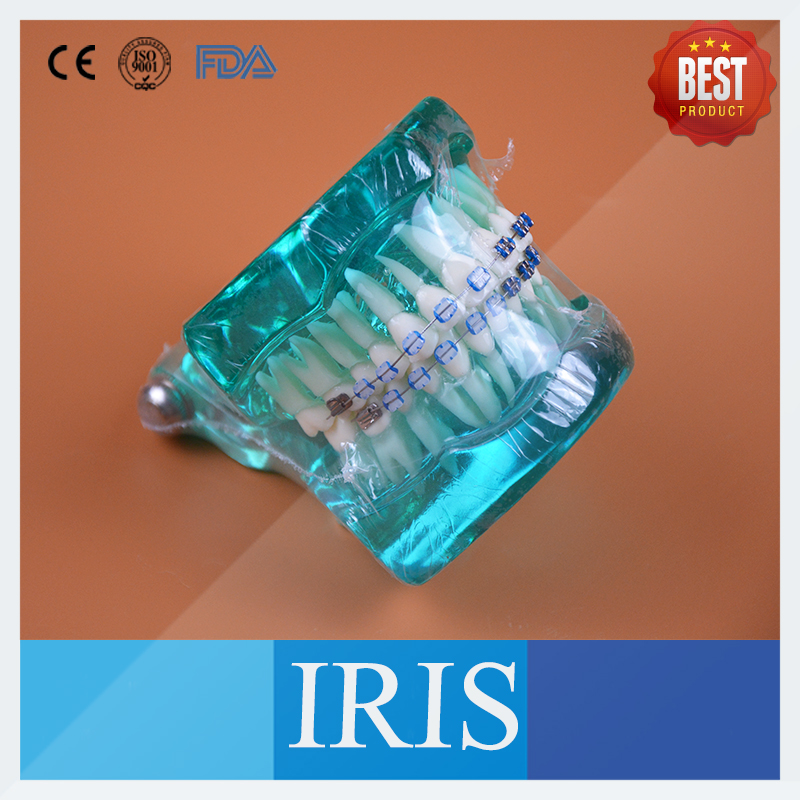 B7-02 Orthodontics Malocclusion Braces Dental Acrylic Teeth Dental Teaching Model Ortho Metal & Ceramic Bracket Teeth Model 2016 dental orthodontics typodont teeth model half metal half ceramic brace typodont with arch wire
