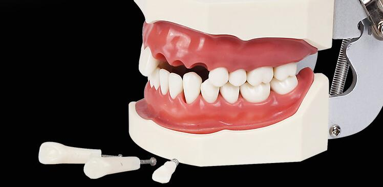 pcs 32 pecas de reposicao modelo teeth ensino 02