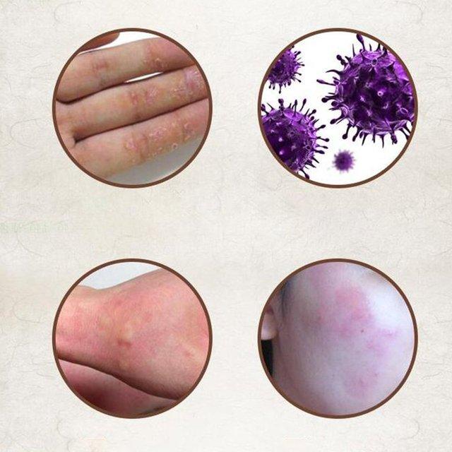 YIGANERJING (bez opakowanie detaliczne) skóra łuszczyca krem zapalenie skóry Eczematoid egzema maść