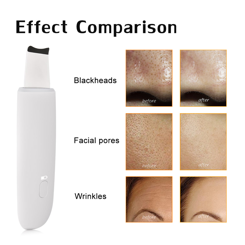 Ultrasonic Skin Scrubber Deep Cleaning Face Scrubber Vibrating Facial Cleansing Spatula Microdermal Beauty Instrument Device (8)