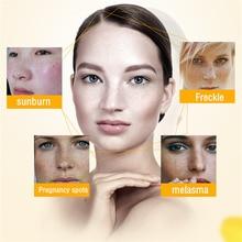 Dimollaure 30g pure 99% Kojic Acid whitening cream Wrinkle removal Freckle melasma Acne scar pigment age spot melanin sunburn