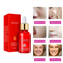 Anti allergy Cosmetics Nature Pomegranate Scar repair Serum Skin Care Acne treatment Essence Anti Wrinkle Essence 15ml/bottle
