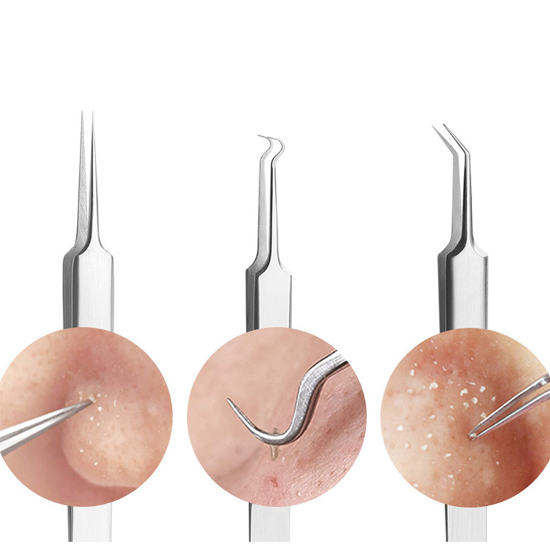 Skin Care Blackhead Pimples Removal Pointed Bend Gib Head Comedone Acne Extractor Af Acne & Blemish Treatments