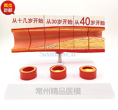 Human Age Vascular Obstruction Medical Model Clear Texture Easy to Carry