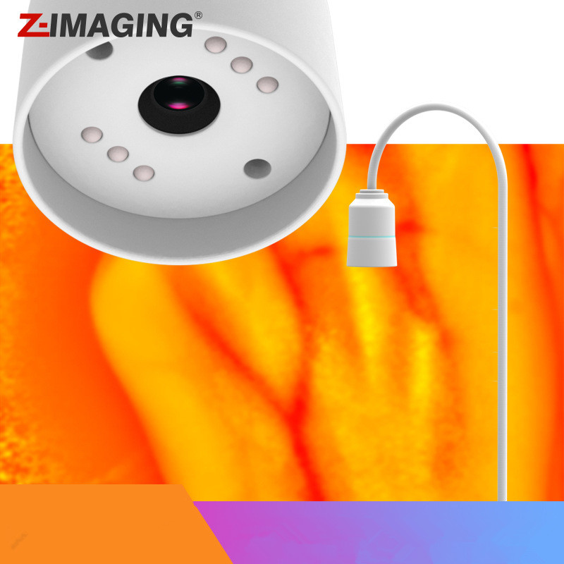 Adults Children Suitable Vein Viewer Display Lights Imaging Find Vein Medical Vein Finder Vein Viewer