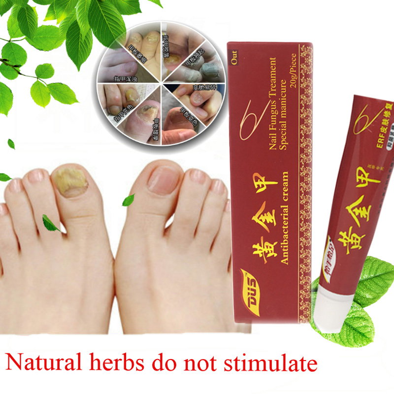 Chinese Medicine Plaster Nail Fungus Treatment Cream Onychomycosis Anti Fungal Nail Infection Fights Bacteria Naturally ointment Онихомикоз